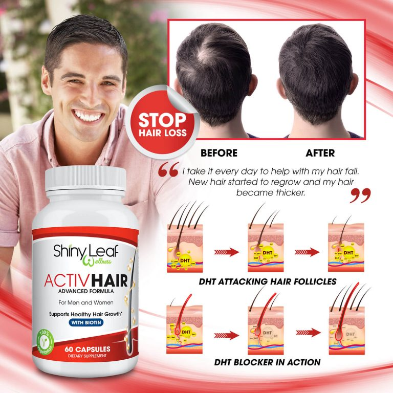 Hair Loss Treatment ActivHair Capsules
